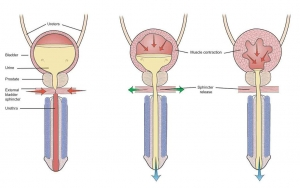 tìm hiểu bệnh viêm bàng quang mãn tính